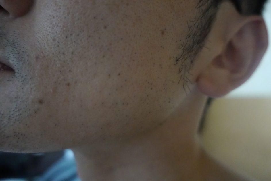 ヒゲ脱毛6回目施術3日後・側面1