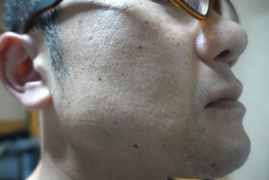 ヒゲ脱毛6回目施術3日後・側面2