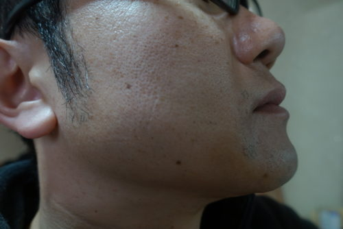 ヒゲ脱毛7回目施術前-側面(左)