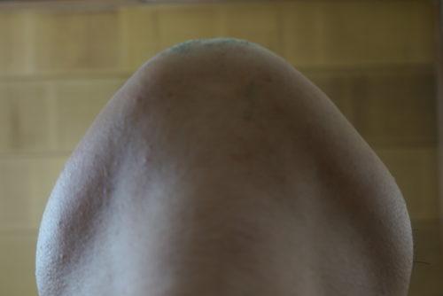 ヒゲ脱毛7回目施術前-あご下