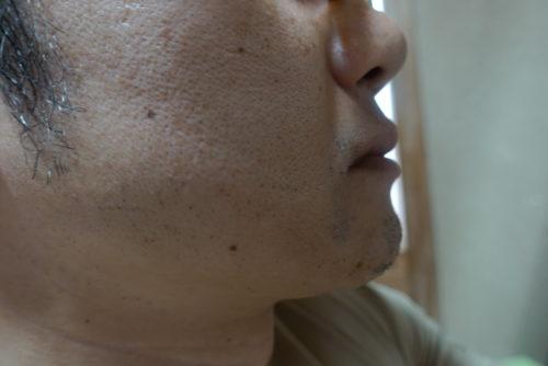 ヒゲ脱毛7回目施術3日後-側面(左)