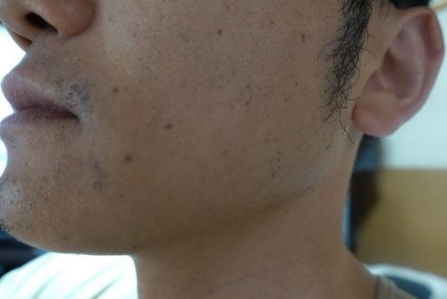 ヒゲ脱毛7回目施術3日後-側面(右)