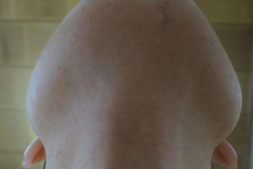 ヒゲ脱毛7回目施術3日後-あご下