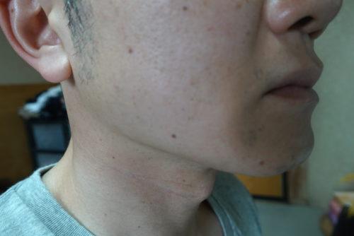 ヒゲ脱毛7回目施術2週間後-側面(左)