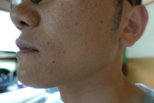 ヒゲ脱毛7回目施術2週間後-側面(右)