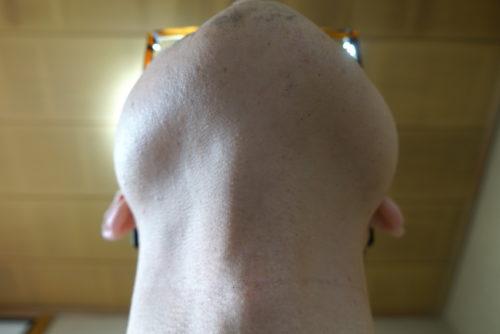 ヒゲ脱毛7回目施術2週間後-あご下