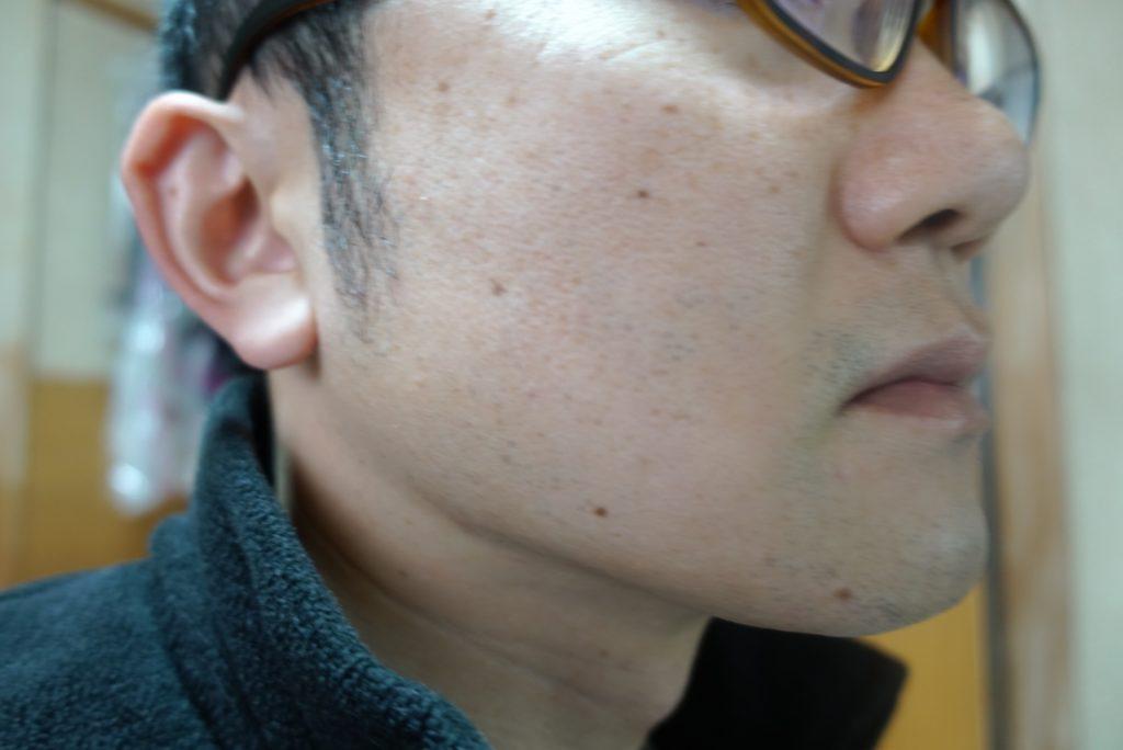 ヒゲ脱毛8回目施術前-側面(左)