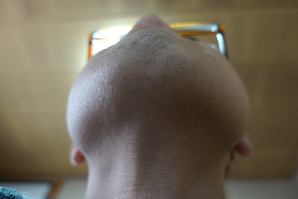 ヒゲ脱毛8回目施術前-あご下