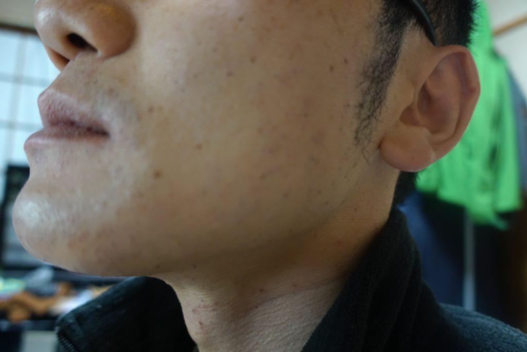 ヒゲ脱毛8回目施術直後-側面(右)