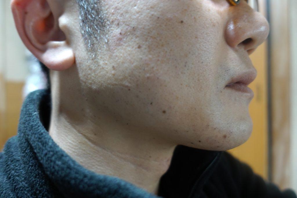 ヒゲ脱毛8回目施術直後-側面(左)