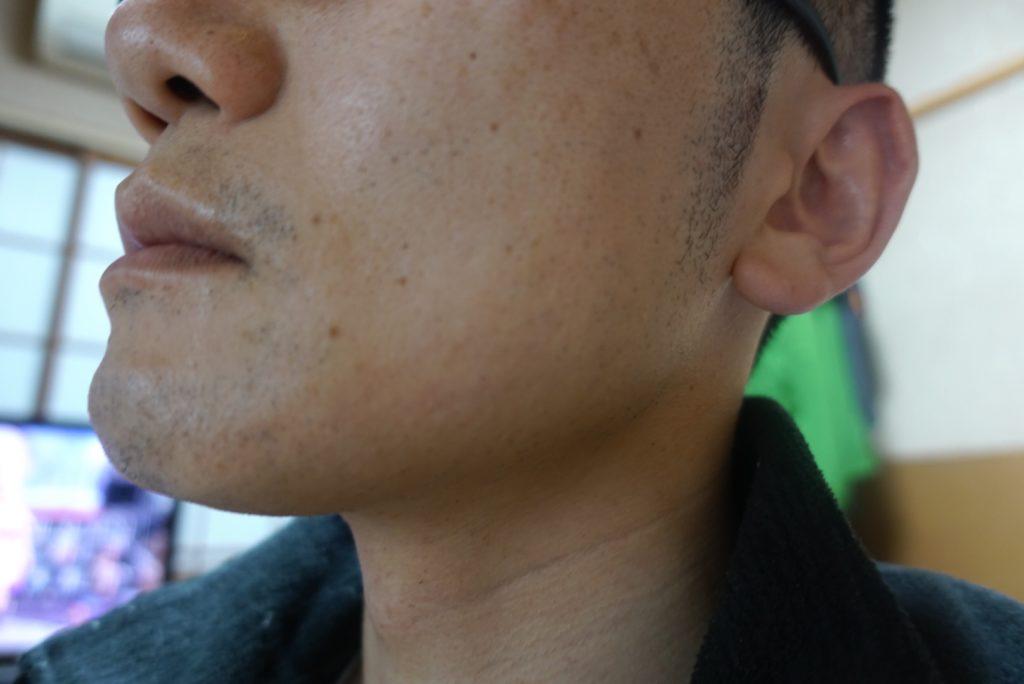 ヒゲ脱毛8回目施術3日後-側面(右)