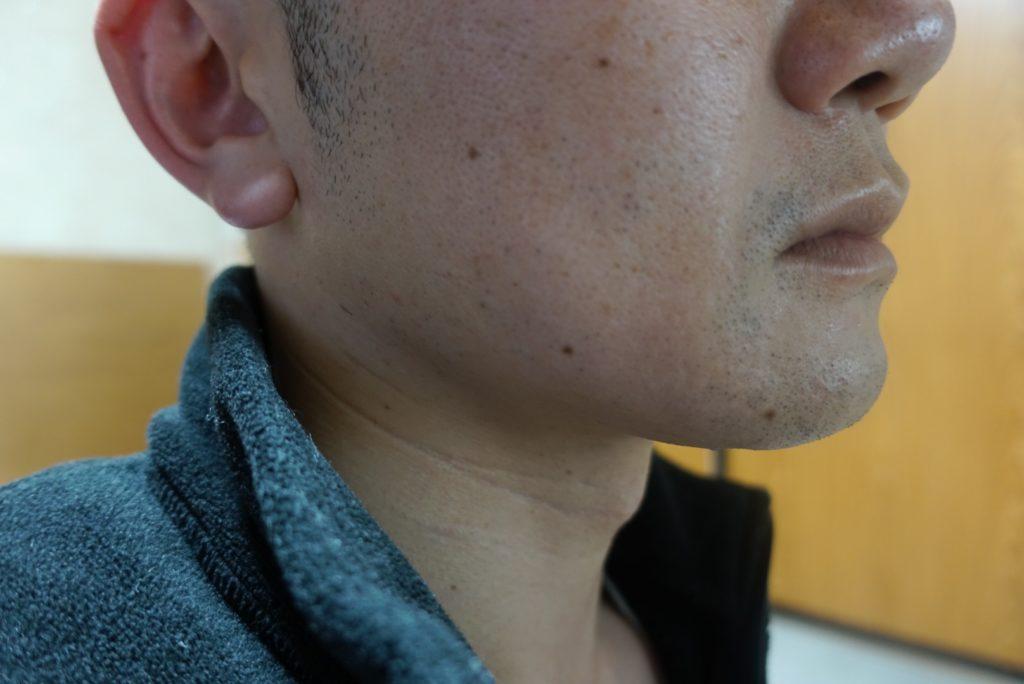 ヒゲ脱毛8回目施術3日後-側面(左)