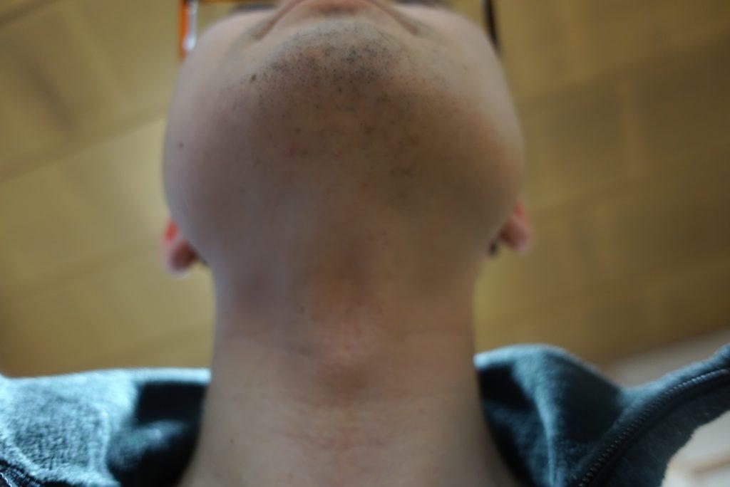 ヒゲ脱毛8回目施術3日後-あご下