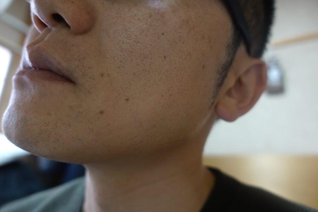 ヒゲ脱毛8回目施術3週間後-側面(右)