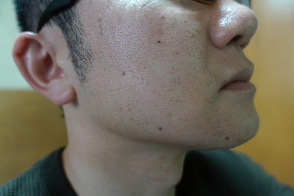 ヒゲ脱毛8回目施術3週間後-側面(左)