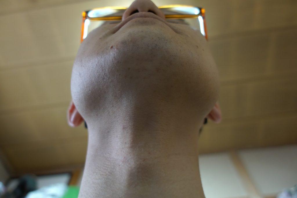 ヒゲ脱毛8回目施術3週間後-あご下
