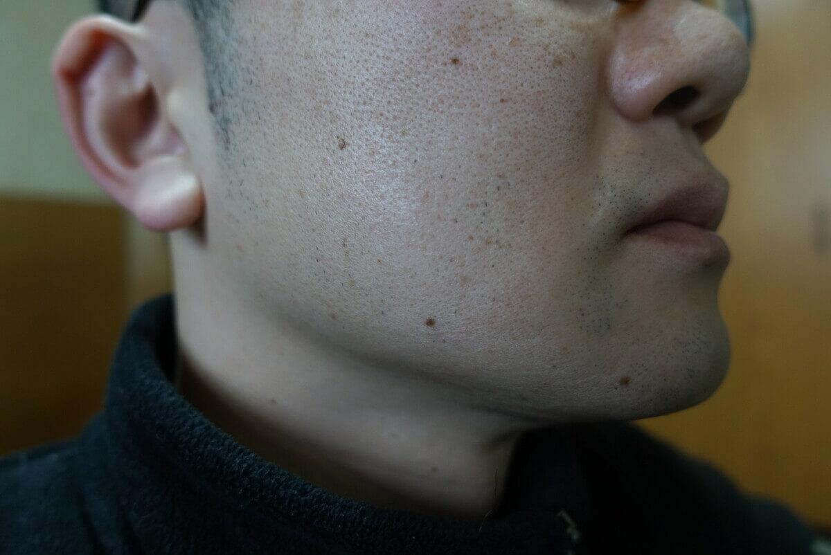 ヒゲ脱毛9回目施術前-側面(左)