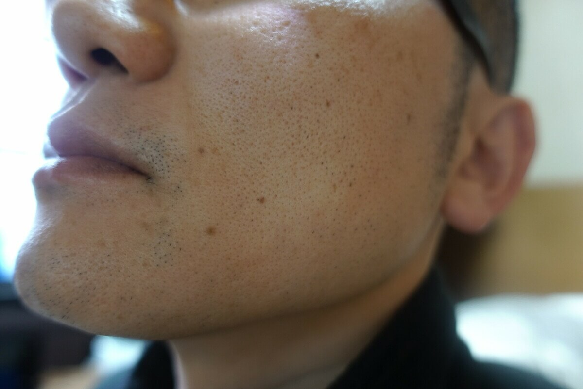 ヒゲ脱毛9回目施術前-側面(右)