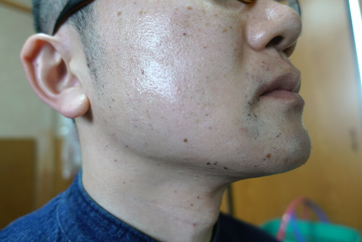 ヒゲ脱毛9回目施術直後-側面(左)