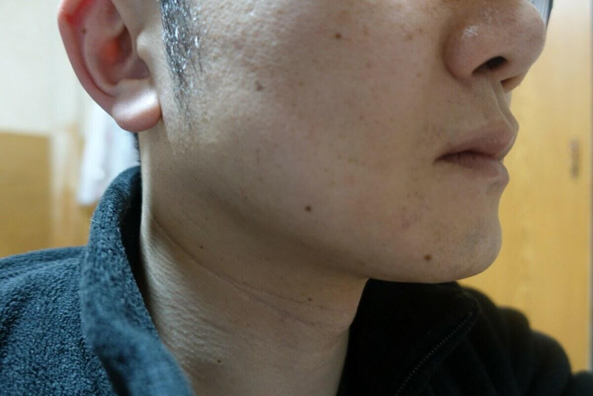 ヒゲ脱毛9回目施術3週間後-側面(左)