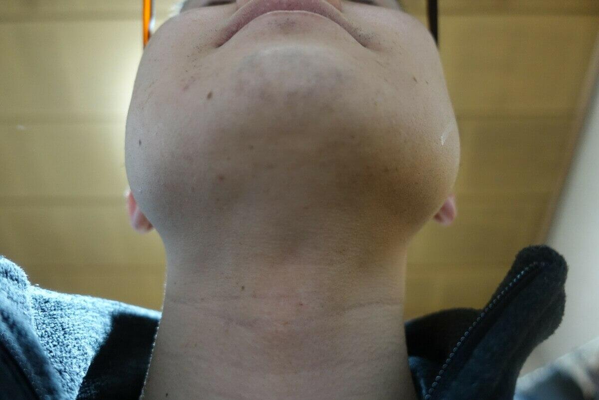 ヒゲ脱毛9回目施術3週間後-あご下