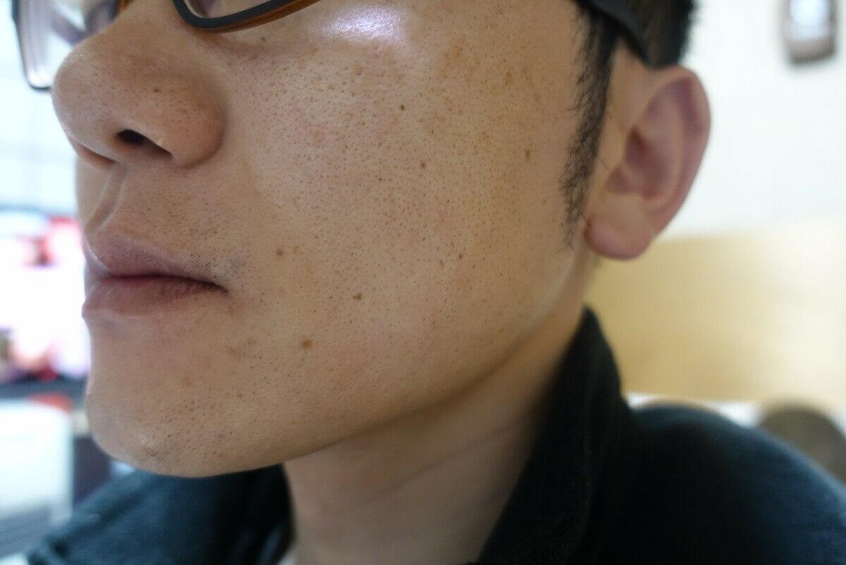 ヒゲ脱毛9回目施術3週間後-側面(右)