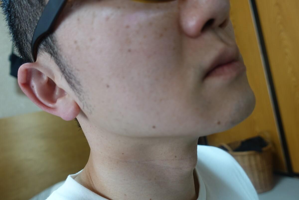 ヒゲ脱毛10回目施術前-側面(右)