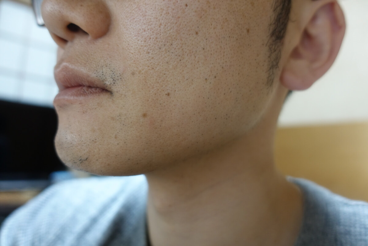 ヒゲ脱毛10回目施術3日後-側面(左)