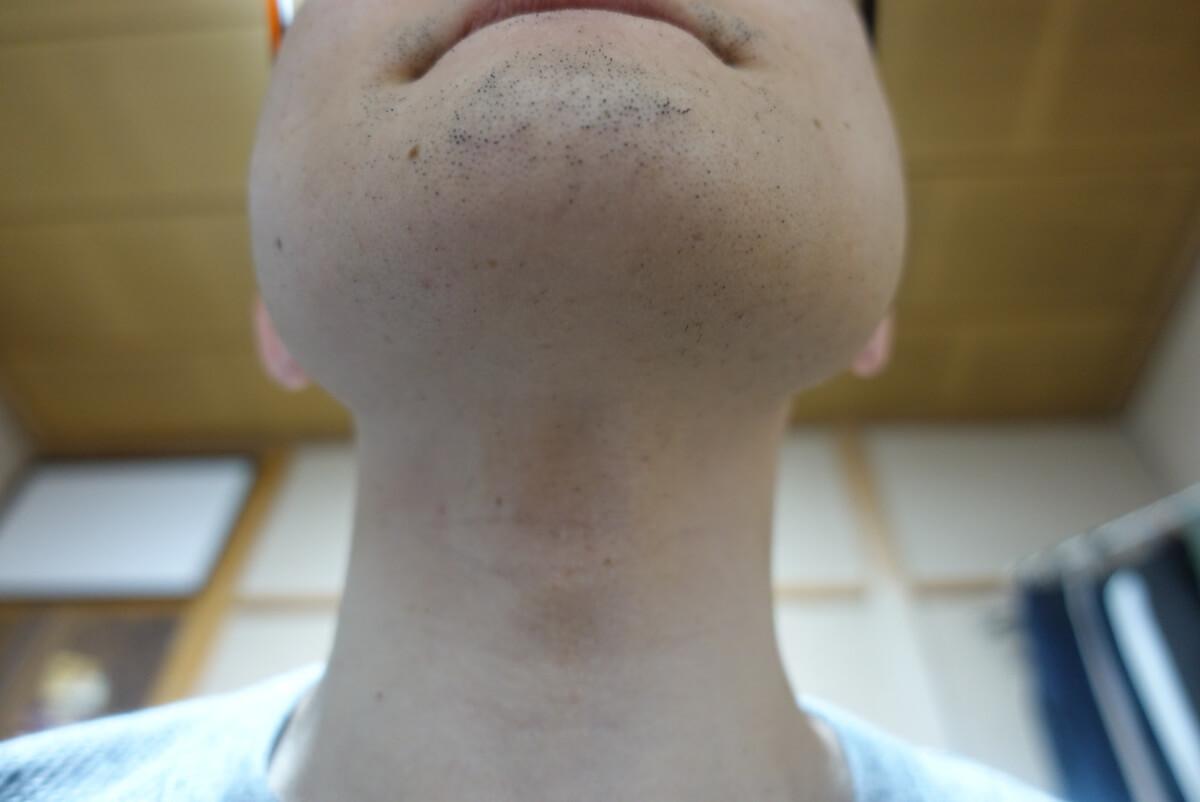 ヒゲ脱毛10回目施術3日後-あご下