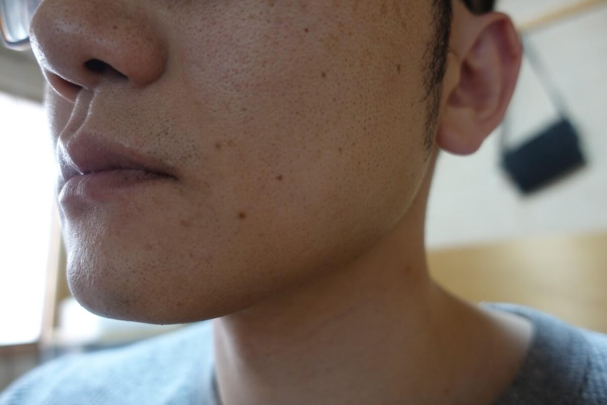 ヒゲ脱毛10回目施術1ヵ月後-側面(左)