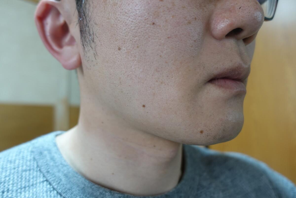 ヒゲ脱毛10回目施術1ヵ月後-側面(右)
