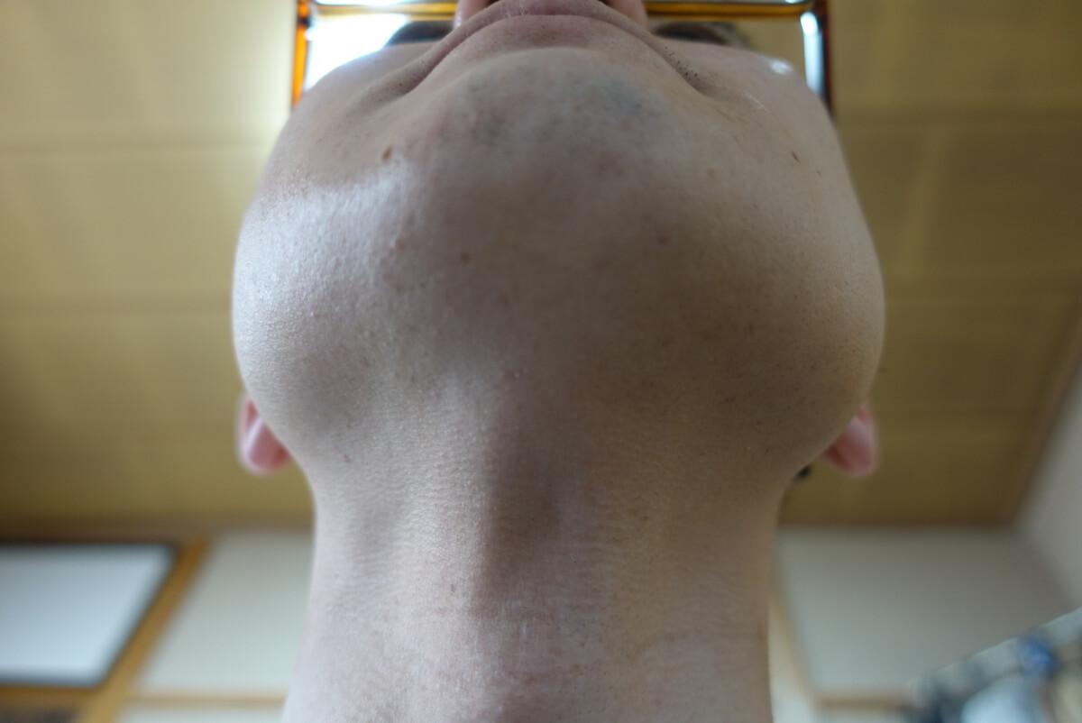 ヒゲ脱毛10回目施術1ヵ月後-あご下
