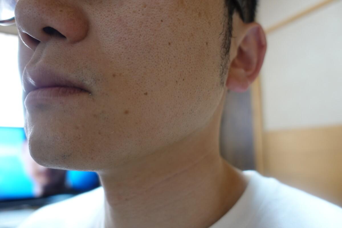 ヒゲ脱毛10回目施術前-側面(左)