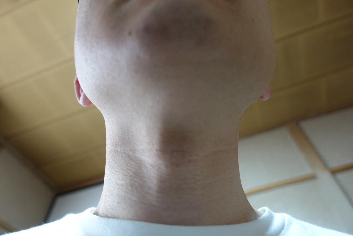 ヒゲ脱毛10回目施術前-あご下