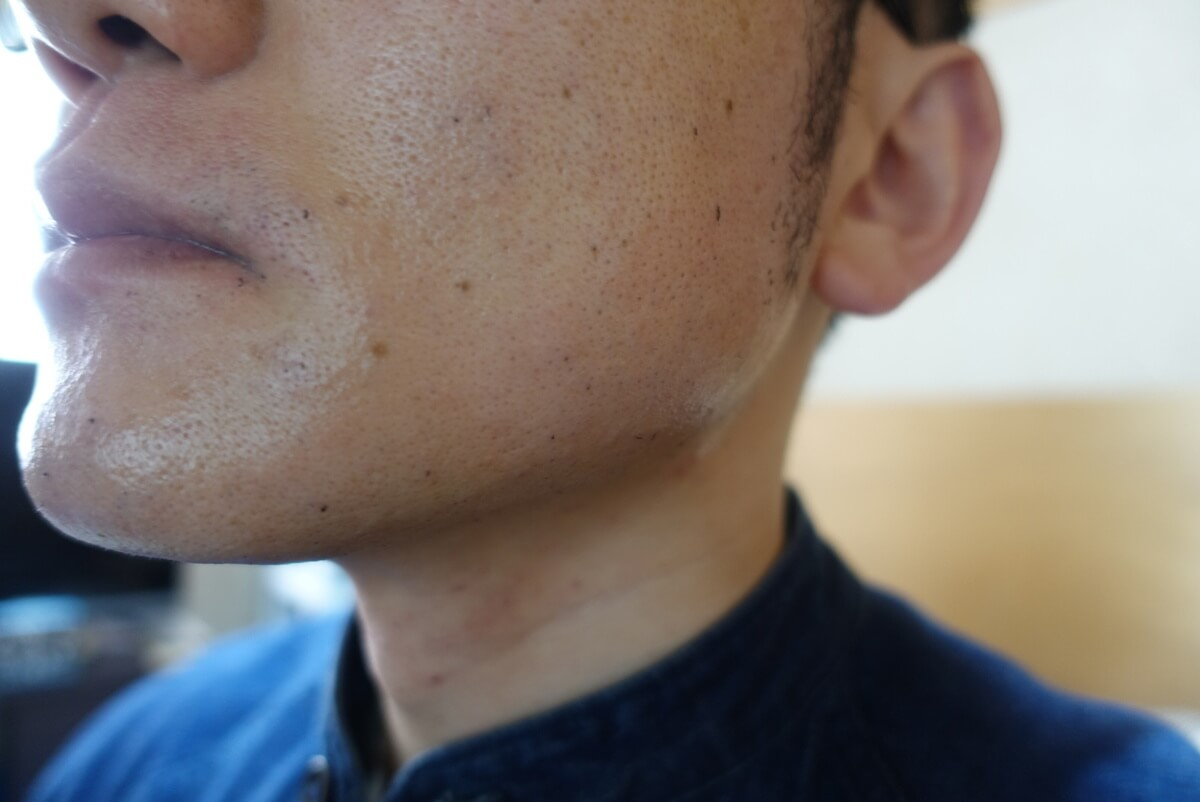 ヒゲ脱毛10回目施術直後-側面(左)