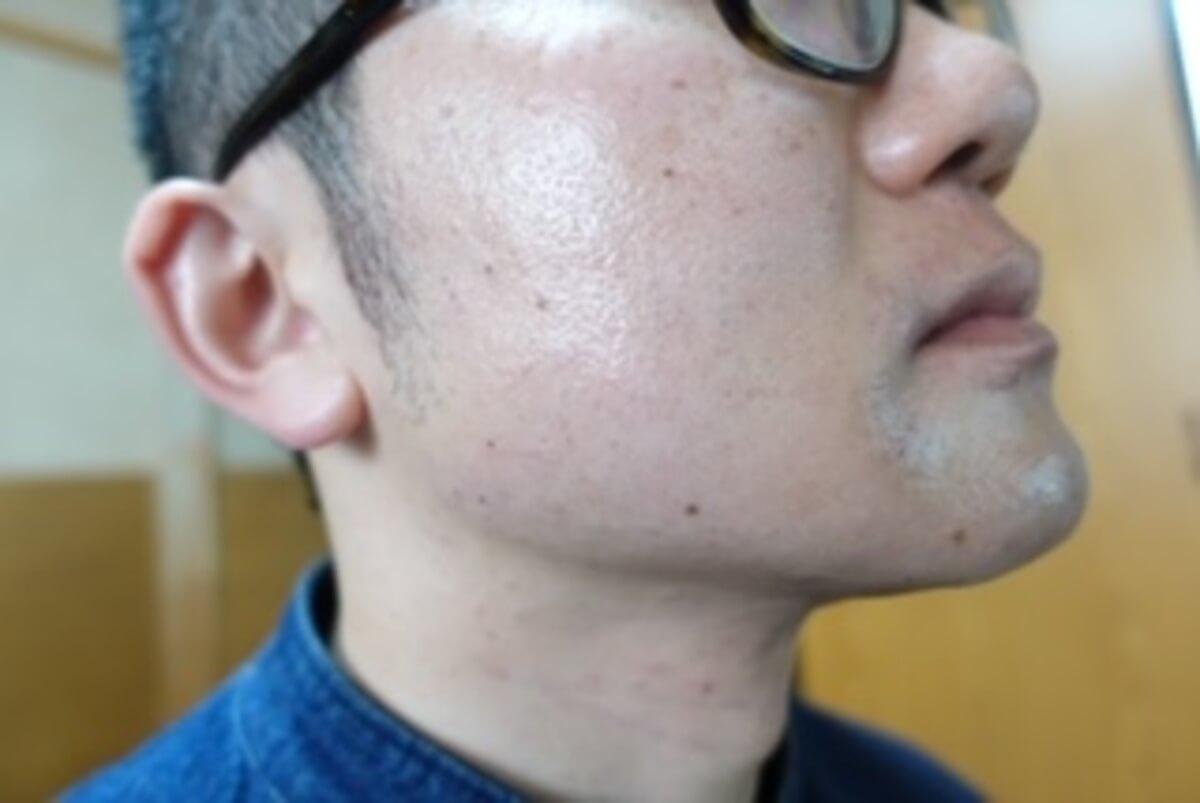 ヒゲ脱毛10回目施術直後-側面(右)