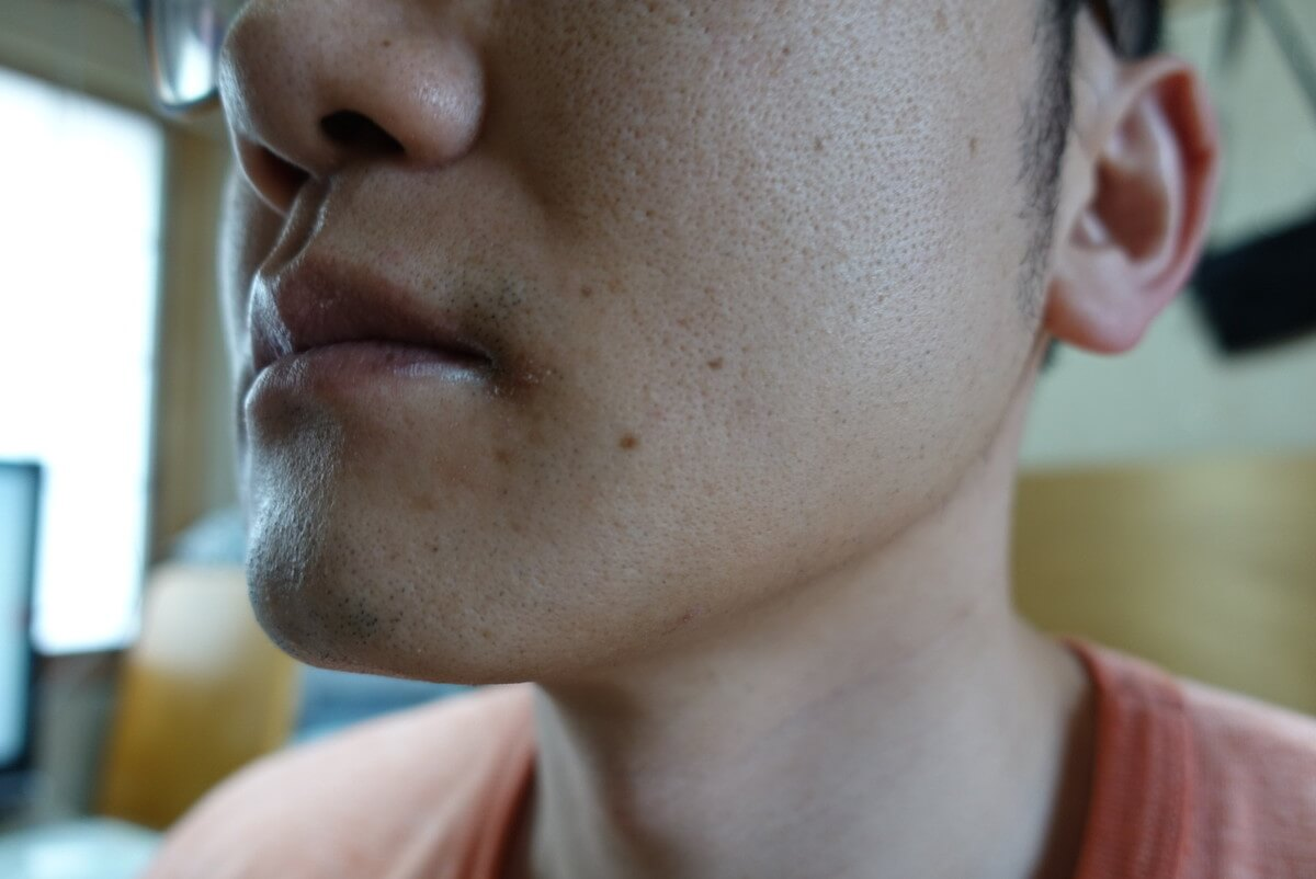 ヒゲ脱毛11回目施術前-側面(右)