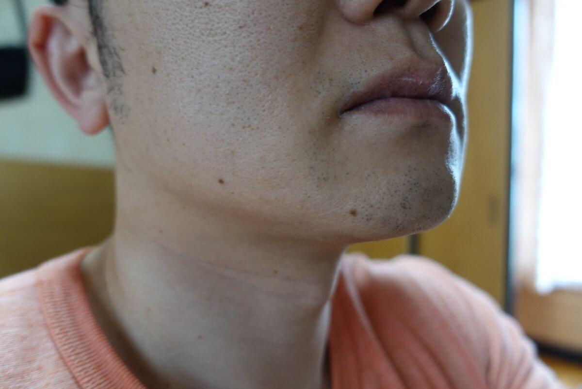 ヒゲ脱毛11回目施術前-側面(左)