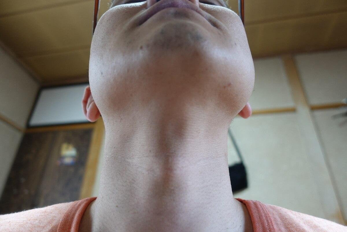 ヒゲ脱毛11回目施術前-あご下