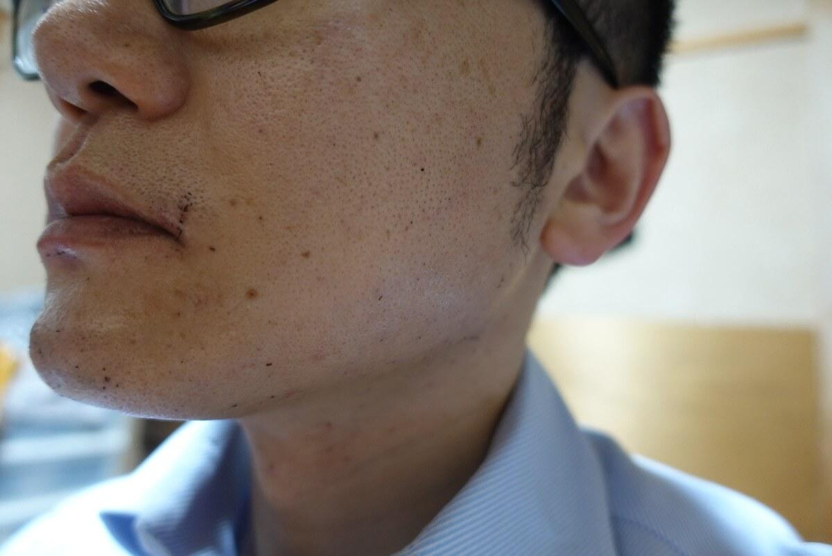 ヒゲ脱毛11回目施術直後-側面(右)