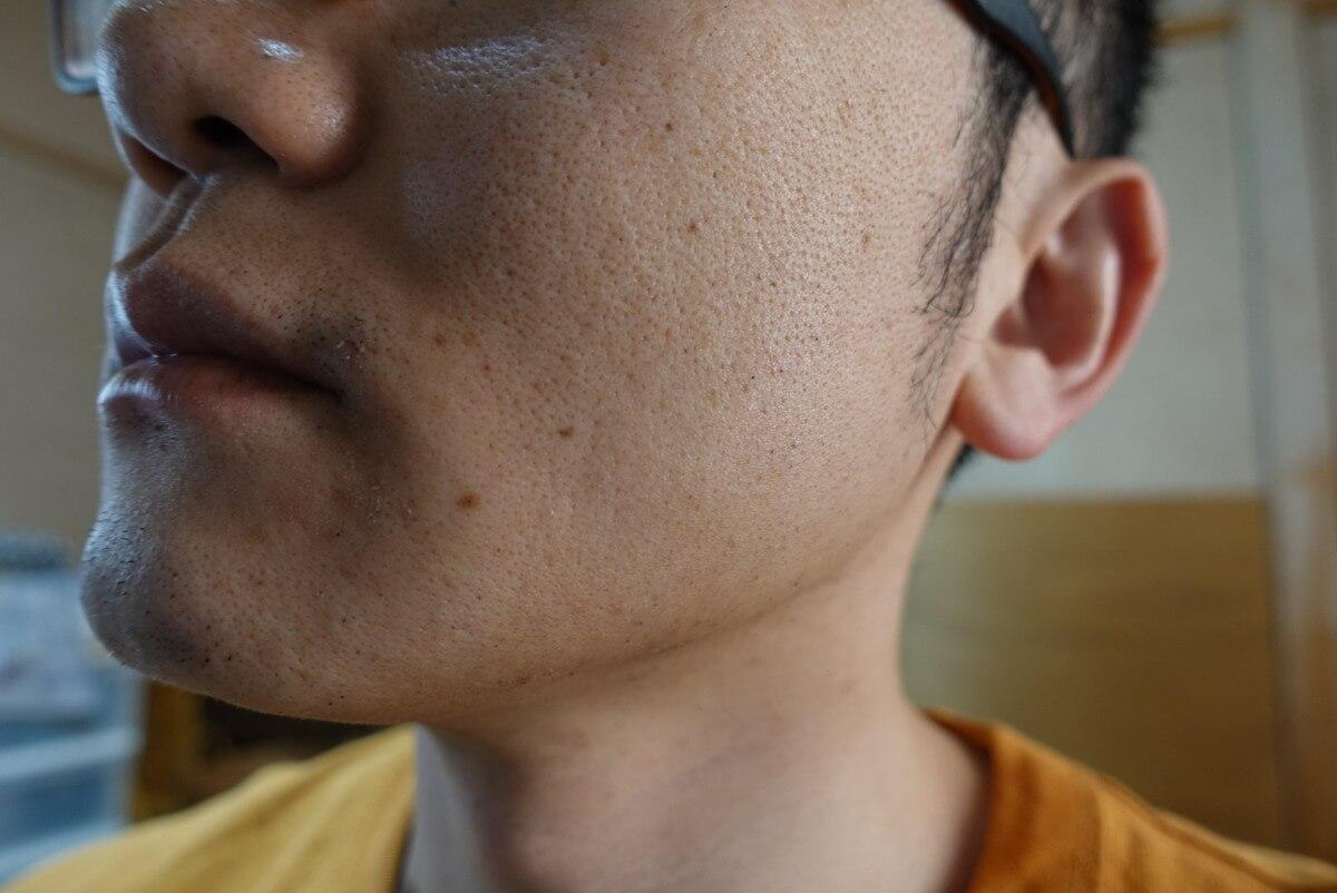 ヒゲ脱毛11回目施術3日後-側面(右)