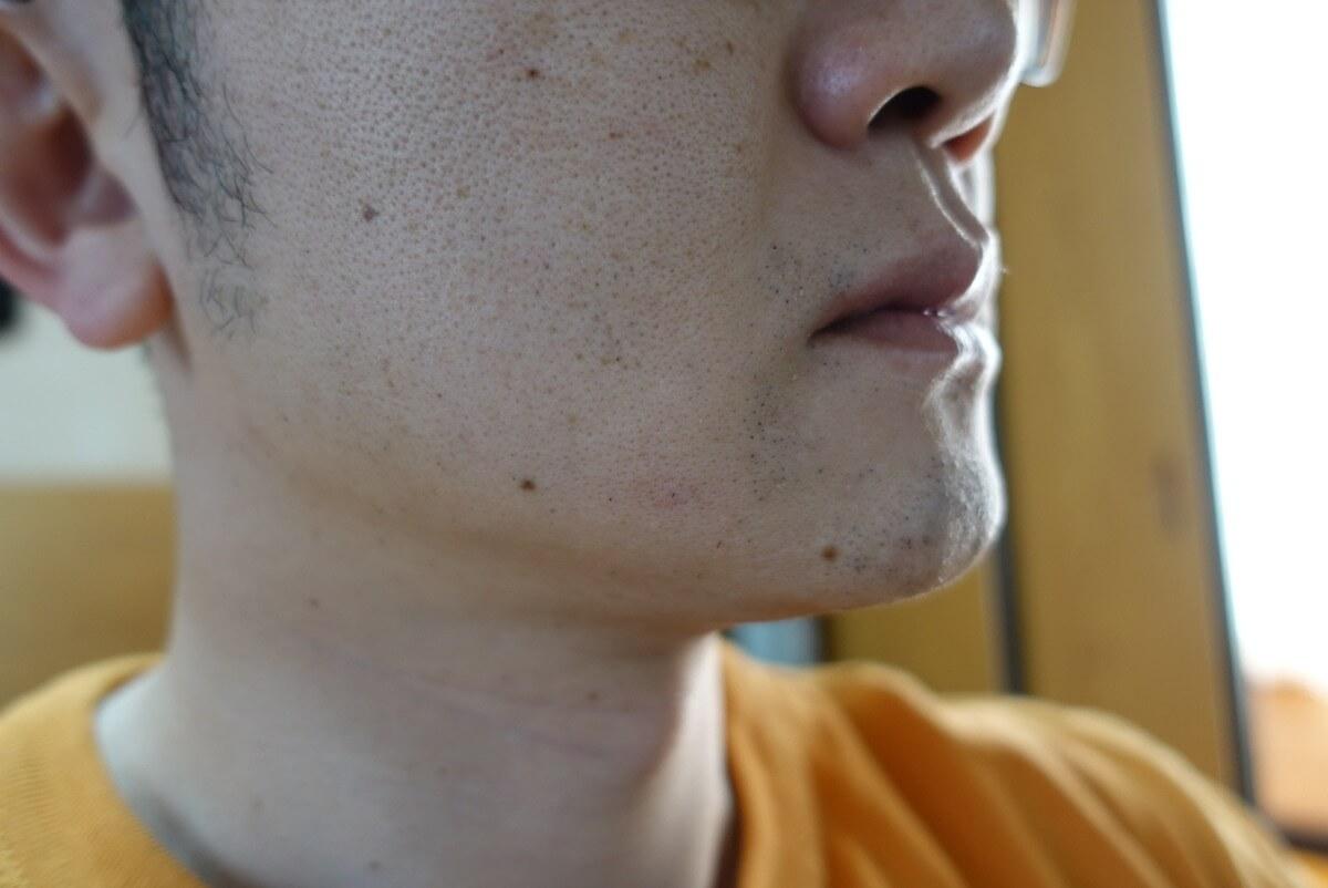 ヒゲ脱毛11回目施術3日後-側面(左)