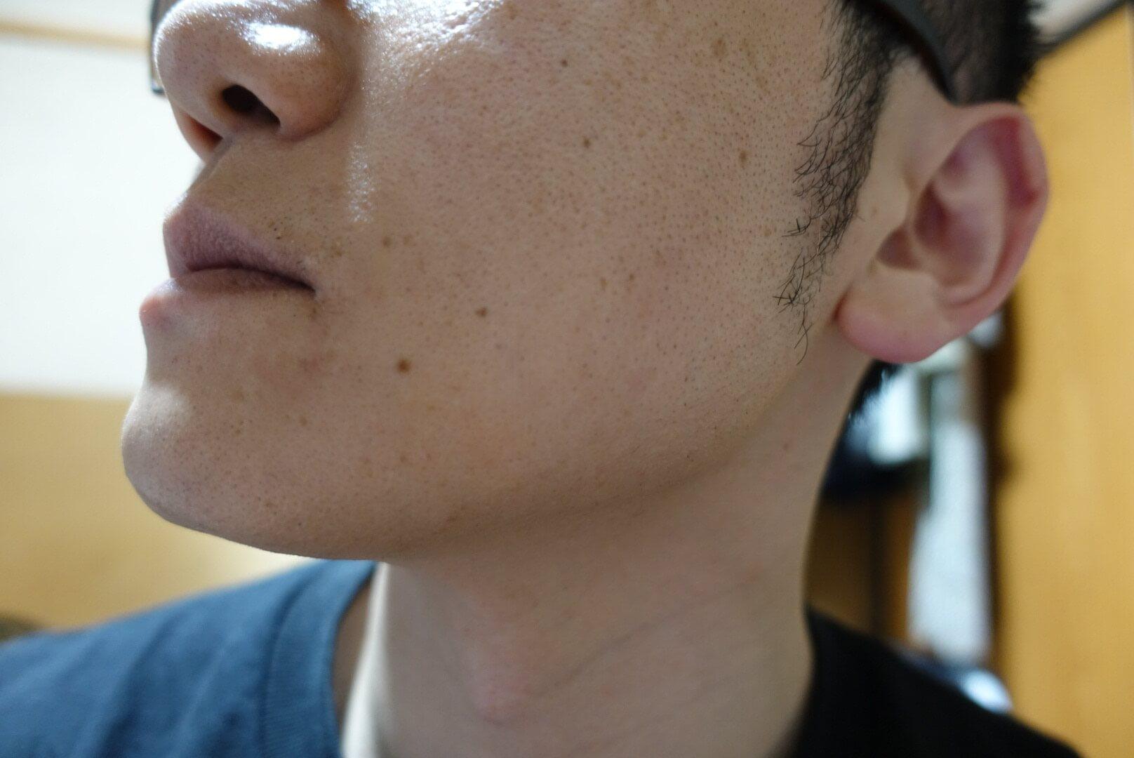 ヒゲ脱毛11回目施術1ヵ月後-側面(左)