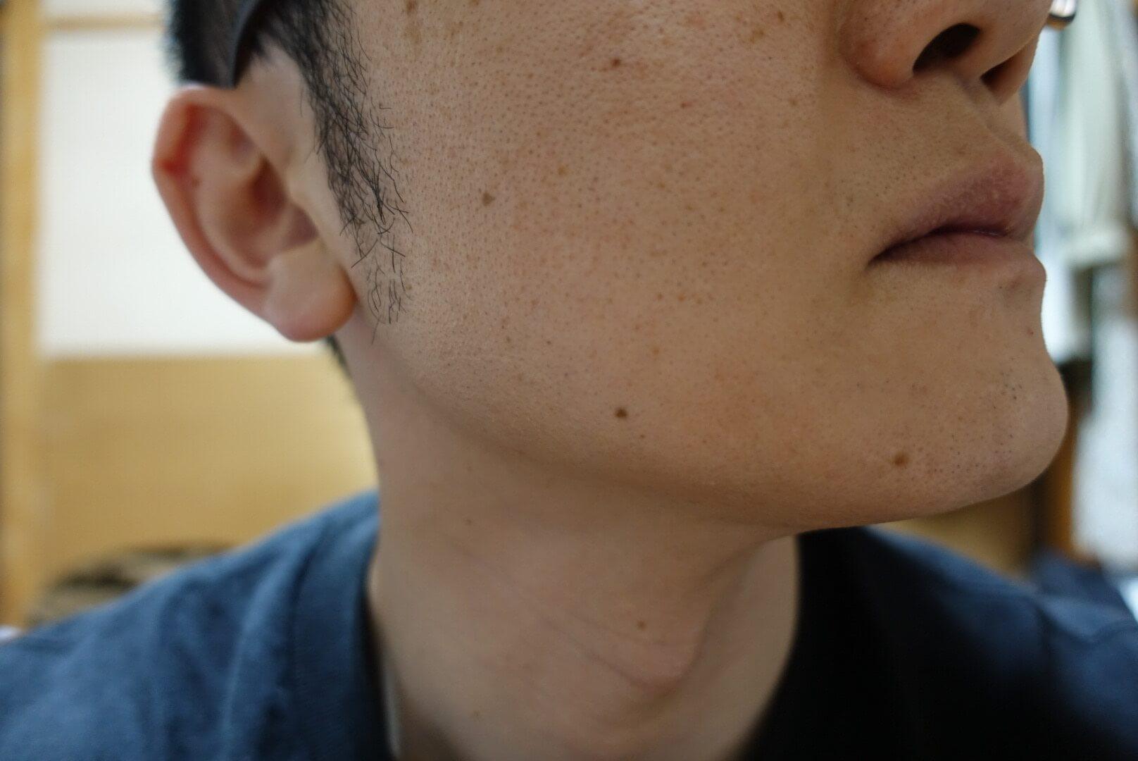 ヒゲ脱毛11回目施術1ヵ月後-側面(右)