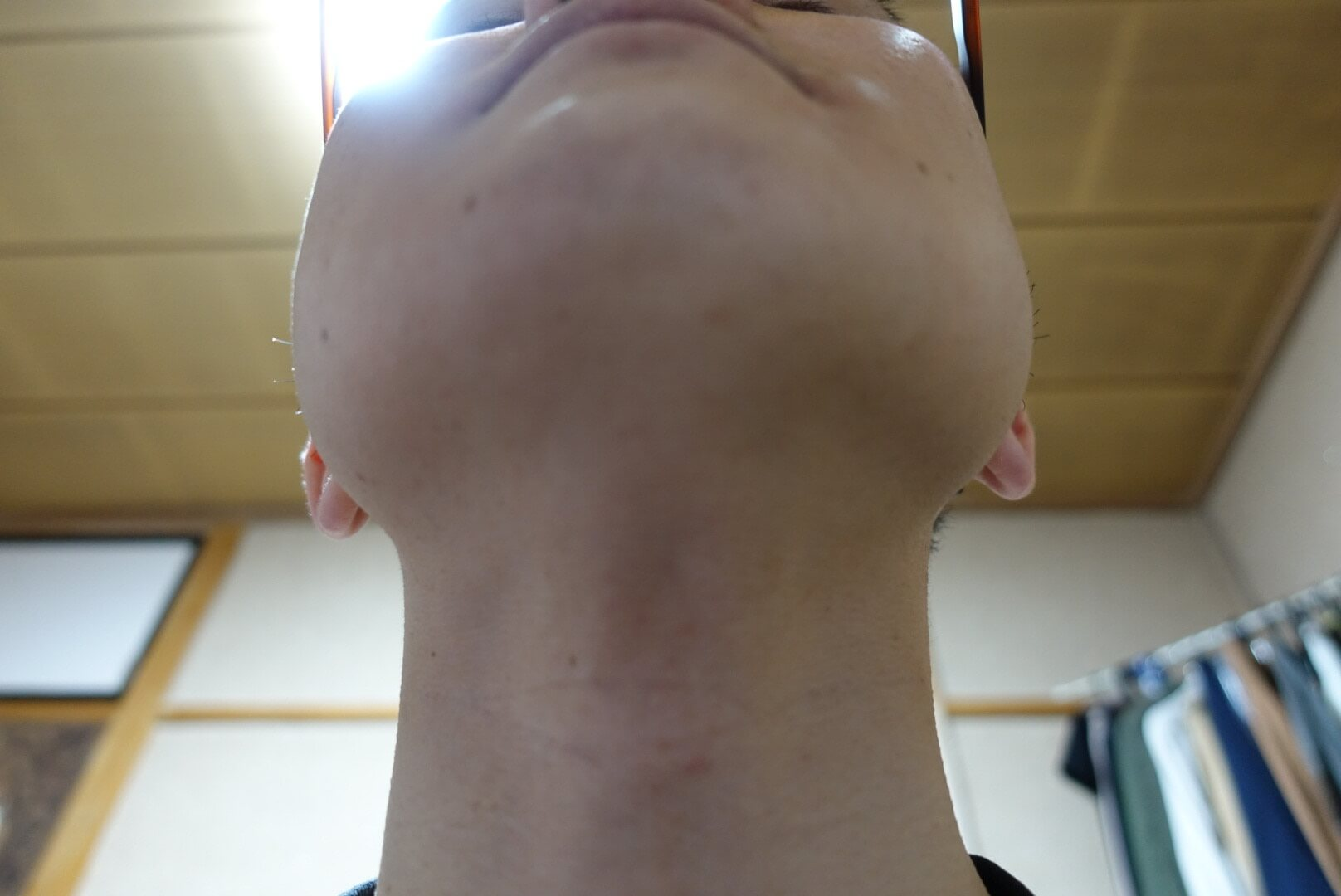 ヒゲ脱毛11回目施術1ヵ月後-あご下