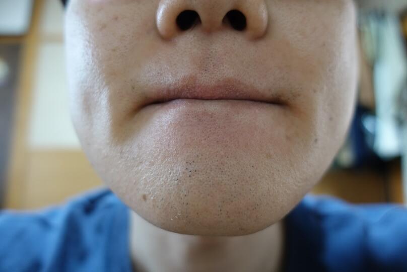 メンズリゼでヒゲ脱毛12回目施術前-正面