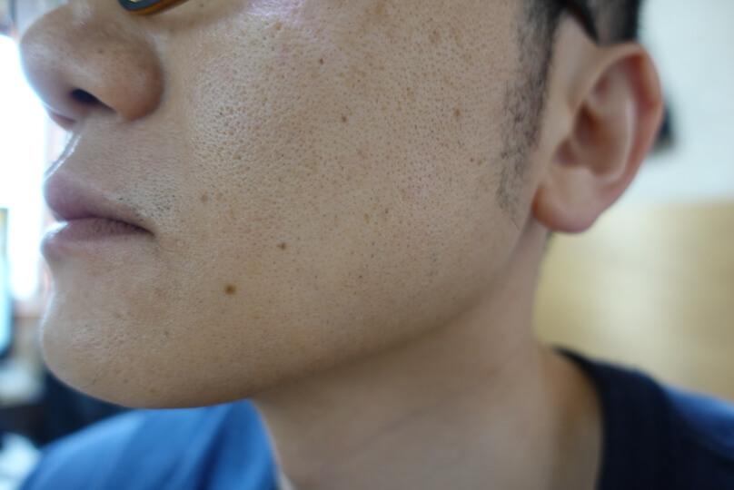 メンズリゼでヒゲ脱毛12回目施術前-側面(左)