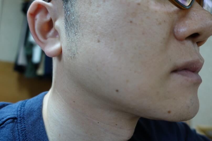 メンズリゼでヒゲ脱毛12回目施術前-側面(右)