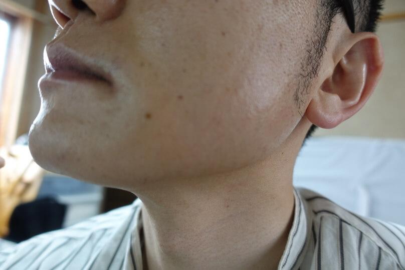 メンズリゼでヒゲ脱毛12回目施術直後-側面(左)