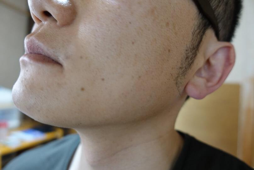 メンズリゼでヒゲ脱毛12回目施術3日後-側面(左)